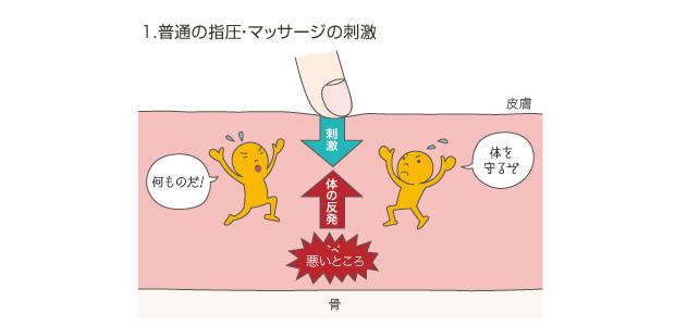 1.普通の指圧・マッサージの刺激の図。指圧などの刺激に対し体を守ろうとして、反発してしまいます。